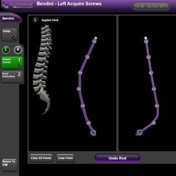 Software Display of Spinal Rod Bending Program