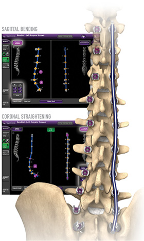 Spinal column with rod supports and software image in background